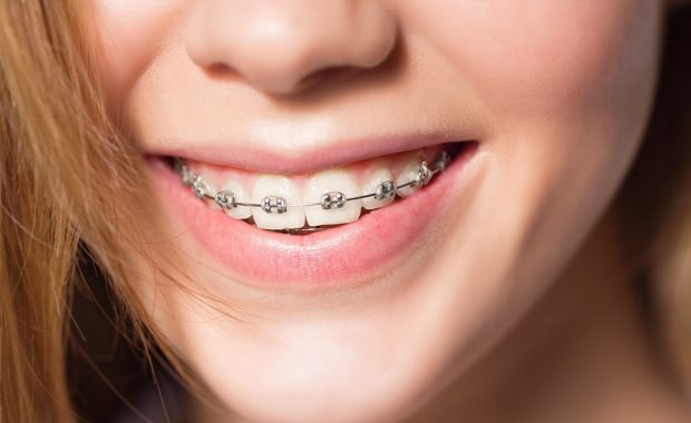 When to Get Braces