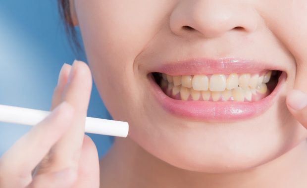 Tobacco Dental Health