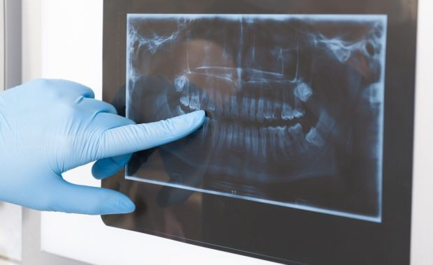 Dental Xray Safety